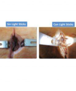 Con y Sin Light Stick Iluminador Luz para iluminación Cavidades Profundas y zona quirúrgica para Separadores y Retractores